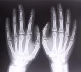 Leczenie CHAD związane z utratą masy kostnej